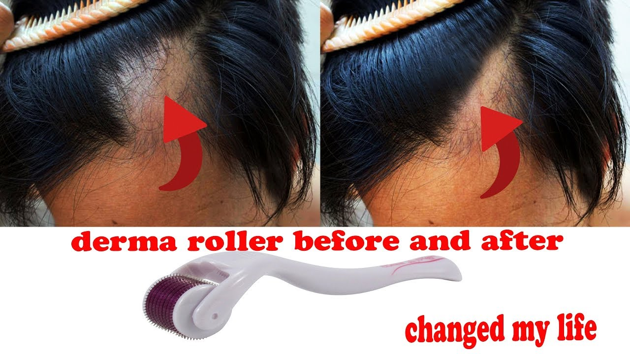 derma roller for hair review